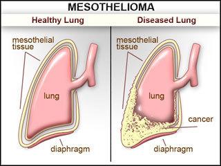 Mesothelioma Causes Symptoms Diagnosis And Treatment