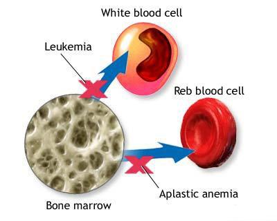 aplastic anemia causes symptoms diagnosis and treatment