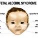 fetal-alcohol-syndrome