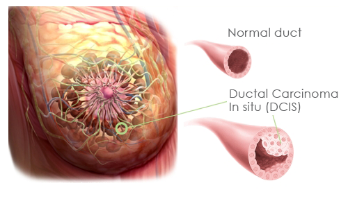 Ductal carcinoma in situ dcis causes symptoms diangosis and