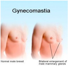 the causes symptoms and treatment of gynecomastia Mammary glandular tissue proliferation is physiologically stimulated by  oestrogens and inhibited by androgens therefore, gynecomastia is generally  caused by.