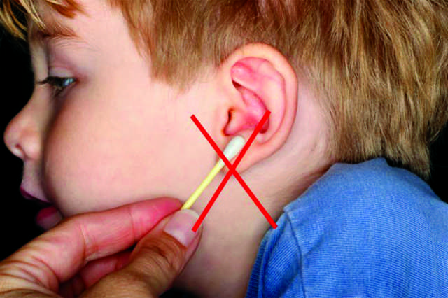 ruptured eardrum causes, symptoms, diagnosis and treatment, Skeleton