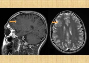 Frontal Lobe Epilepsy