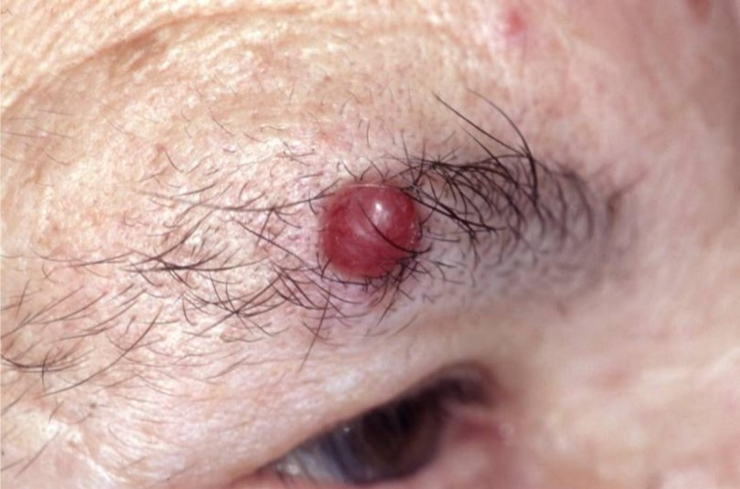 Carcinoma Natural Treatment