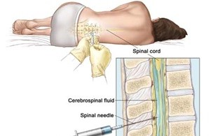 Spinal Headache