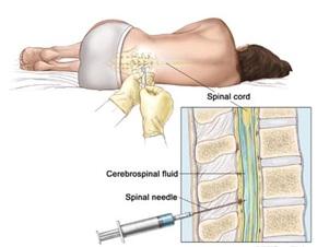 Spinal Headache