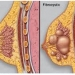 Fibrocystic Breast