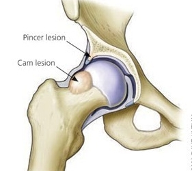 Hip Impingement Syndrome