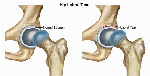 hip-labral-tear