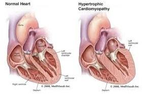 hypertrophic-cardiomyopathy
