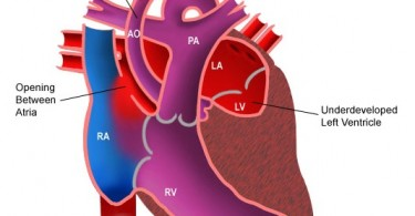 hypoplastic-left-heart-syndrome