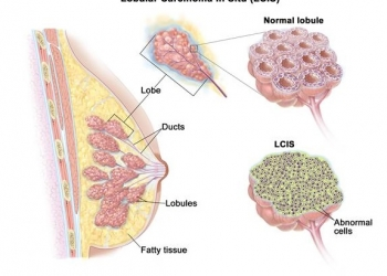 lobular-carcinoma-in-situ
