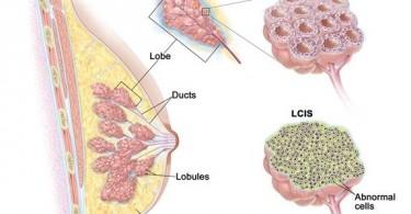 lobular-carcinoma-in-situ