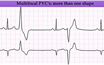 premature-ventricular-contractions