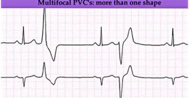 premature-ventricular-contractions