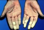raynauds-disease
