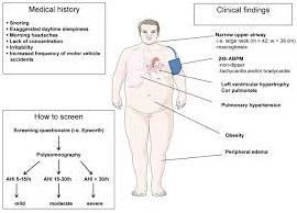 secondary-hypertension