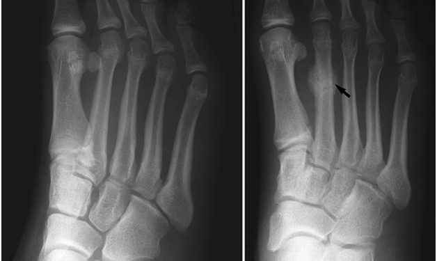 stress-fractures