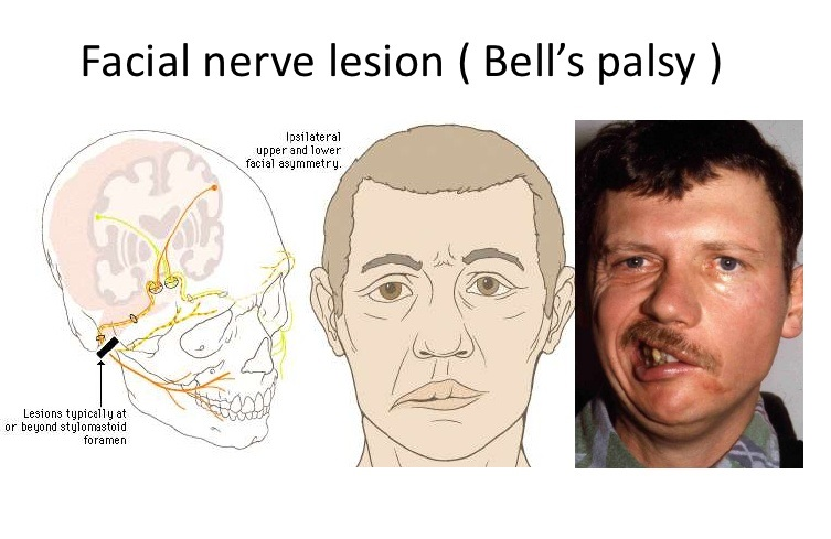 Causes of Facial Palsy - Bells Palsy
