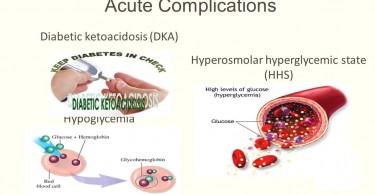 diabetic-hyperosmolar-syndrome