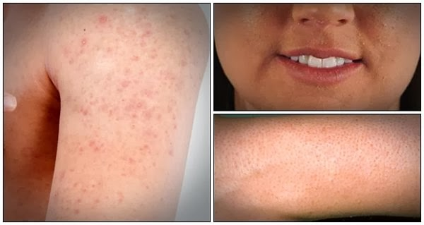 Home Remedies For Keratosis Pilaris