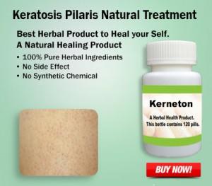 Keratosis Pilaris Natural Treatment