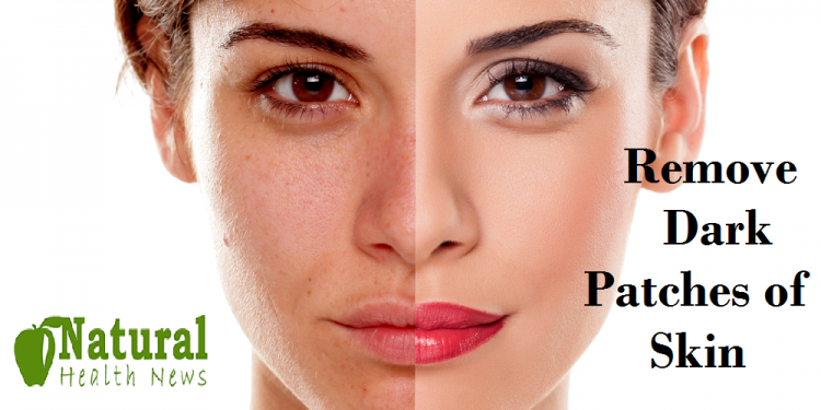 Dark Patches of Skin
