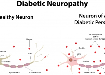 diabetic-neuropathy