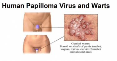 Human Papillomavirus (hpv) In Men Health A-Z | He...