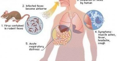 Hantavirus Pulmonary Syndrome