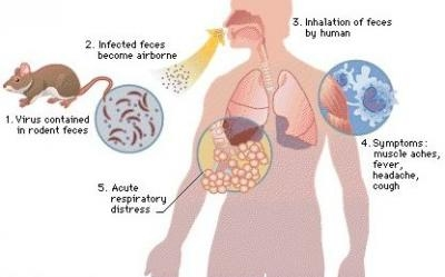 Hantavirus Pulmonary Syndrome