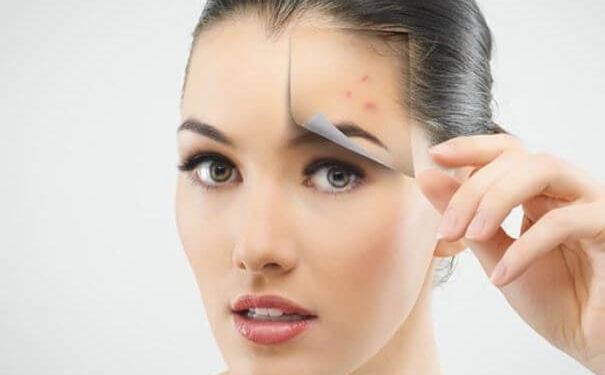 10 Ways to Get Rid of Pimples Overnight