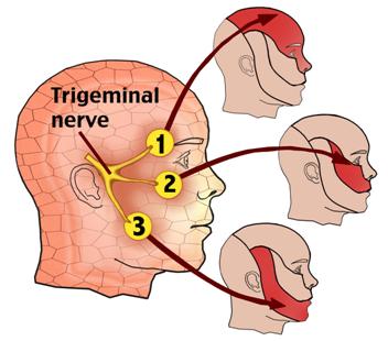 Natural Treatment For Trigeminal Nerve Pain