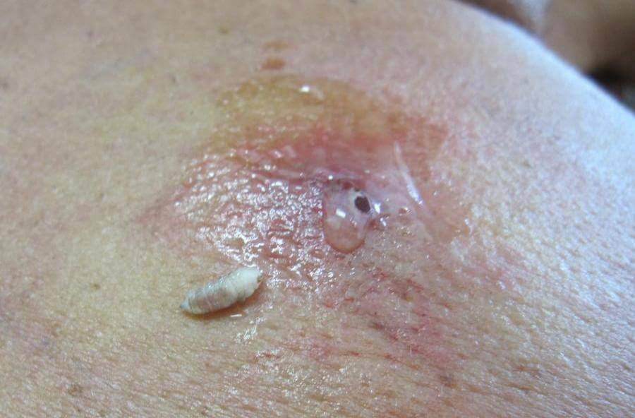 Myiasis Causes, Symptoms, Diagnosis and Treatment ...