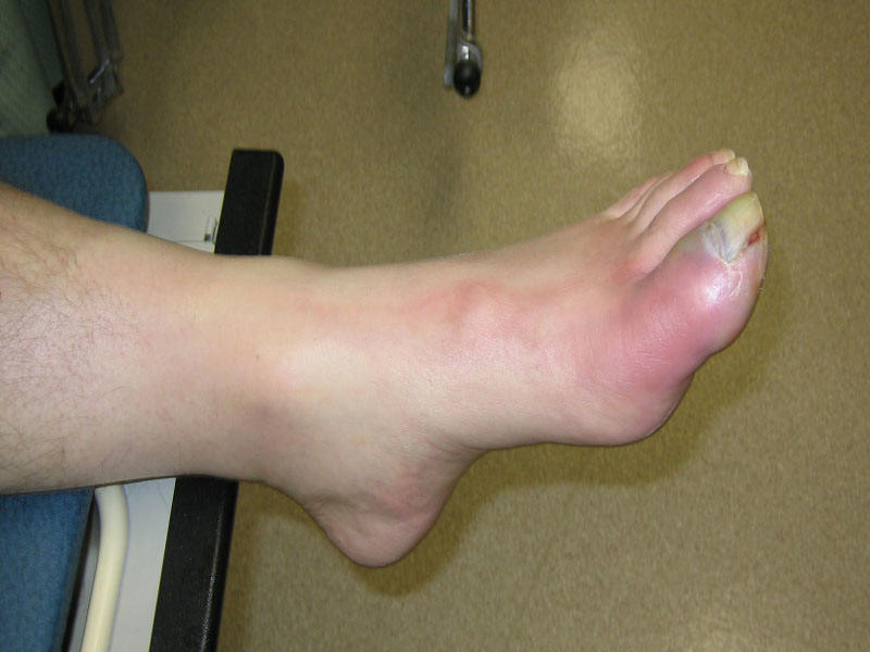 Osteomyelitis Causes, Symptoms, Diagnosis and Treatment - Natural Health News
