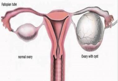 ovarian cyst diet
