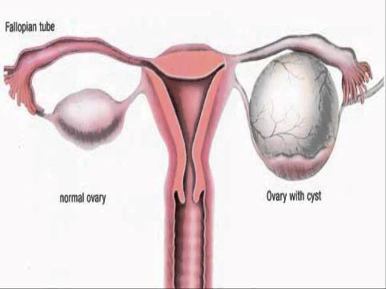 Ovarian Cyst Causes Symptoms Diagnosis and Treatment