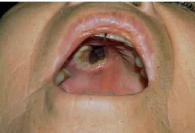 Zygomycosis