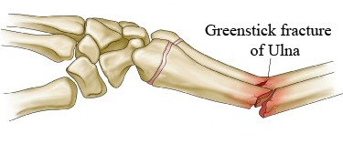 Greenstick fractures Causes, Symptoms, Diagnosis and Treatment