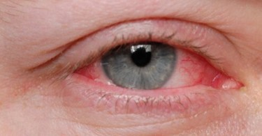 FUNGAL EYE INFECTION