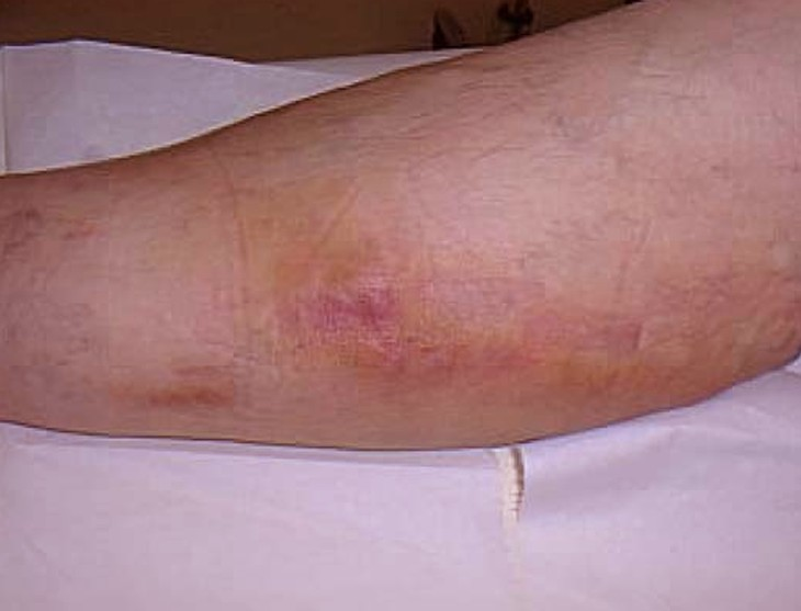 Thrombophlebitis