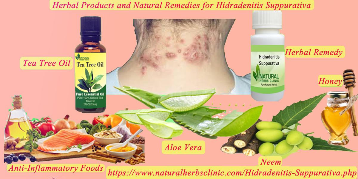 Natural Remedies for Hidradenitis Suppurativa