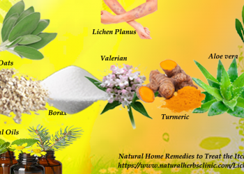 Natural Remedies for Lichen Planus
